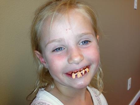 teethannika (1)